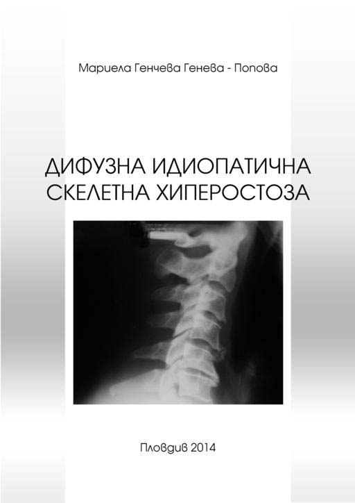 Дифузна идиопатична скелетна хиперостоза – diffuse idiopathic skeletal hyperostosis (DISH)